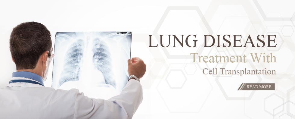 Treating lung disease with cell transplantation