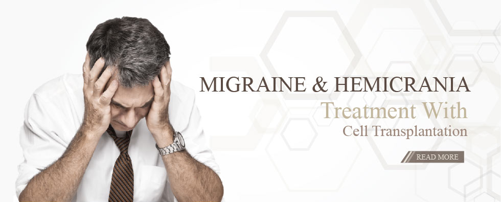 Treating accute migraines and hemicrania with cell transplantation
