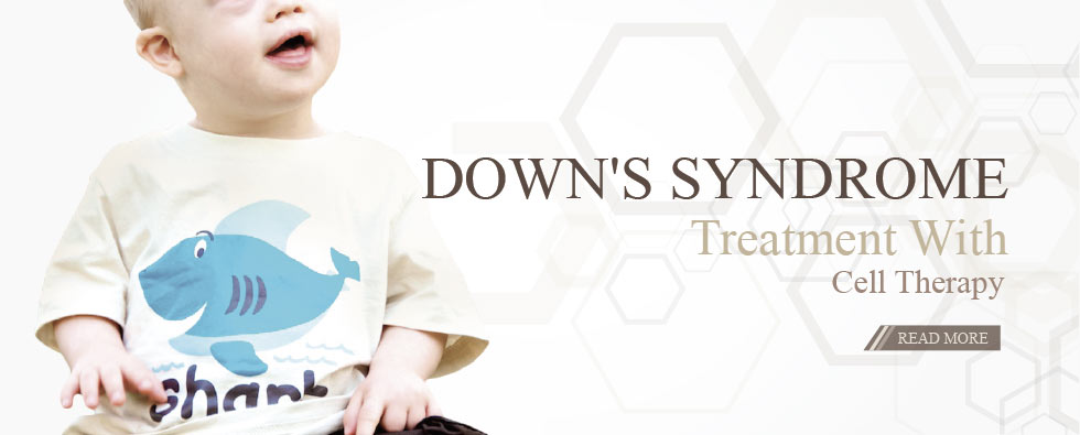 Treating Downs Syndrome, with stem cell transplantation